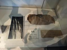 Mummified feet
